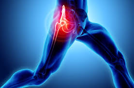 Dolor de cadera - Prótesis de cadera
